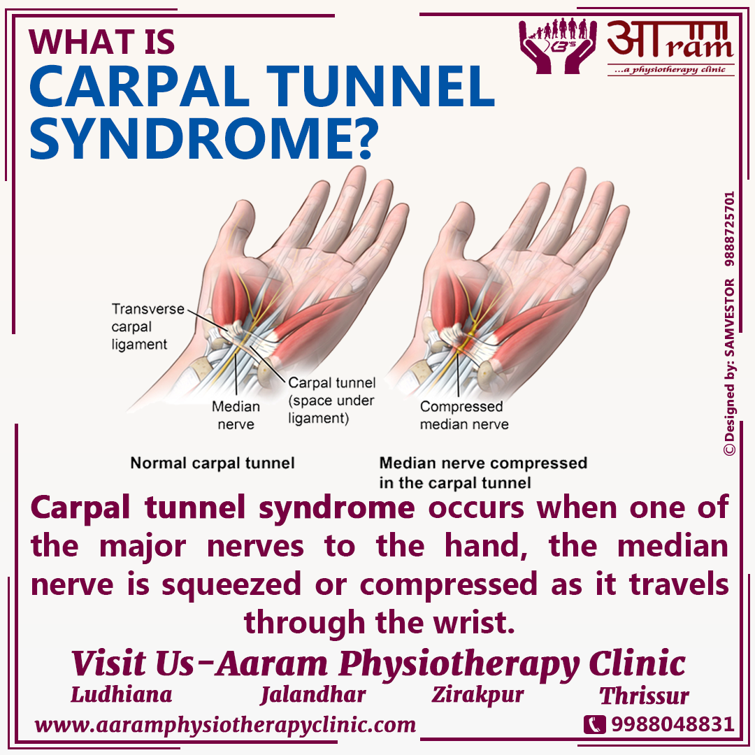 carpal tunnel syndrome (cts) definition, symptoms, causes & exercises