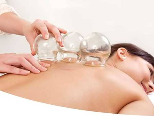 Cupping Technique | Aaram Physiotherapy Clinic