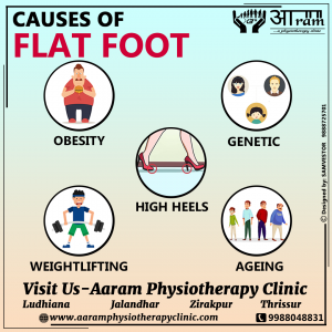 Causes of Flat Foot