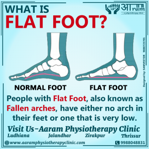 What is Flat Foot